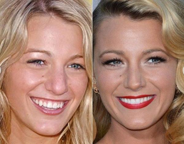 Os sorrisos dos famosos
