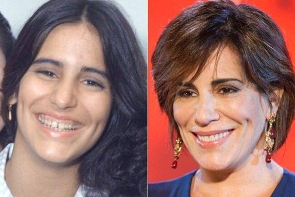 A transformação nos sorrisos dos famosos